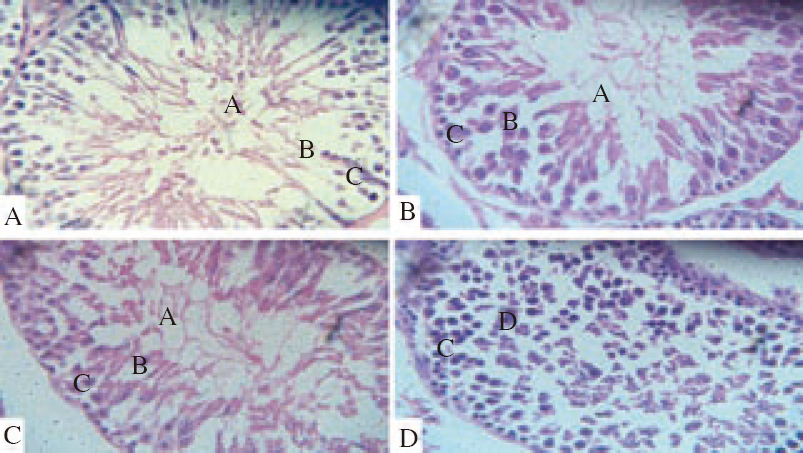 Figure 5: Photomicrograph of testis section (H&E, ×400) from experimental rats after 90 day (chronic study) treatment with HLEHA incorporated in feed.