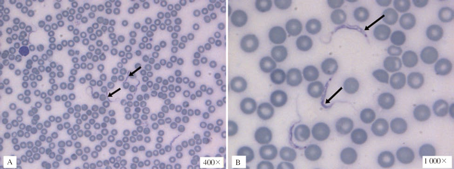 Figure 3: Light microscopic images of thin blood films showing presence of <i>Trypanosoma</i> spp. (A) The trypomastigote stage under a magnification of 400×(arrows), and (B) under a magnification of 1 000× in oil immersion (arrows).