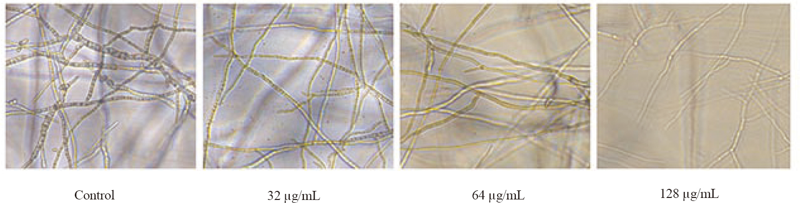 Figure 3: Microscopic examination of the hyphal growth of FSSL (F3) after 48 h of treatment with different concentrations of <i>C. amada</i>.