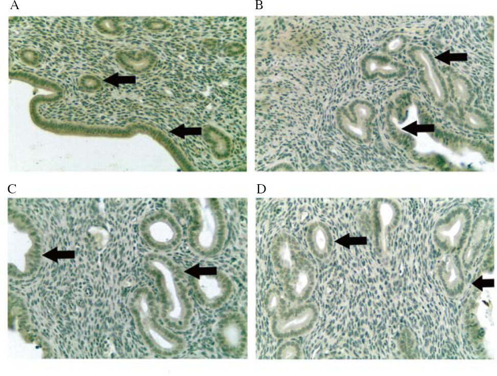 Figure 8: Expression of complement C3 in the luminal epithelium and glandular epithelium from different treatment groups at 400× magnification. Mice were administered with (A) vehicle control (VC), (B) BPA, (C) <i>Gracilaria changii</i> (GC) and (D) GC + BPA (<i>n</i>=8). The expression of complement C3 in the luminal and glandular epitheliums are indicated by black arrows